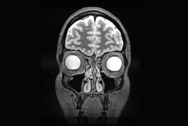 Иллюстрация к статье: Первый эксперимент по количественному самоизмерению мозга