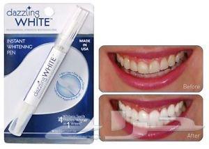 مجموعة تبييض الأسنان (القلم جهاز الأشعة)