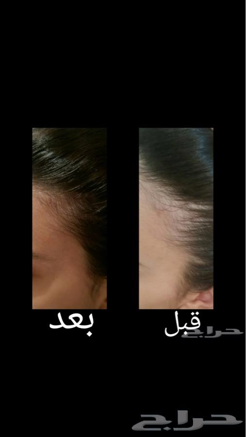 زيت الشعر الافغاني خام وأصلي 100في100