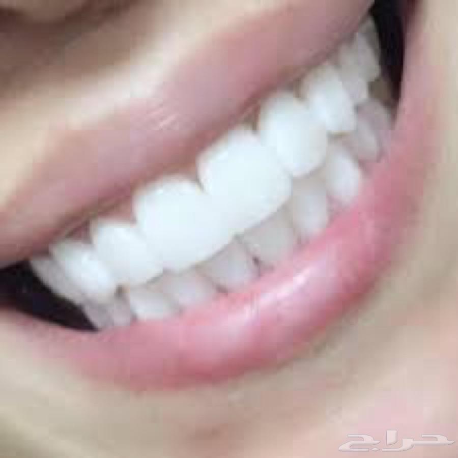 »  الابتسامة المتميزة
