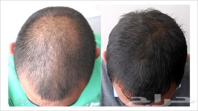 رغوة منع تساقط وتكثيف الشعر بريطاني minoxidil