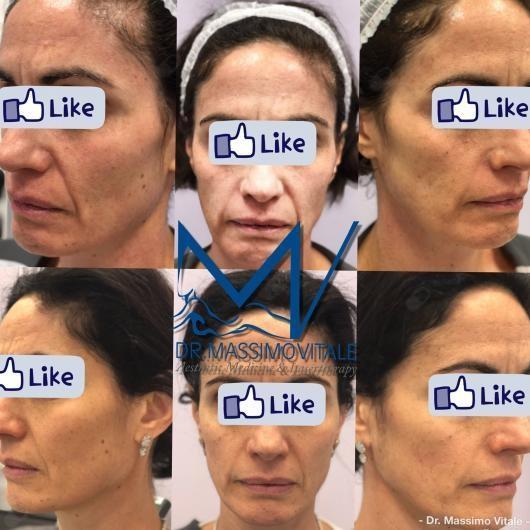 Dr  Massimo Vitale, medico estetico - Prenota online
