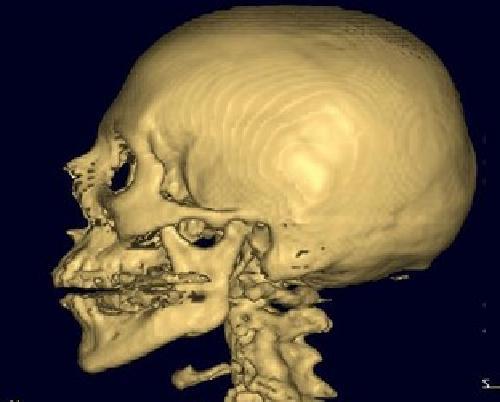 Височная кость КТ