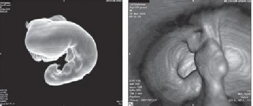 Виртуальная колоноскопия кишечника