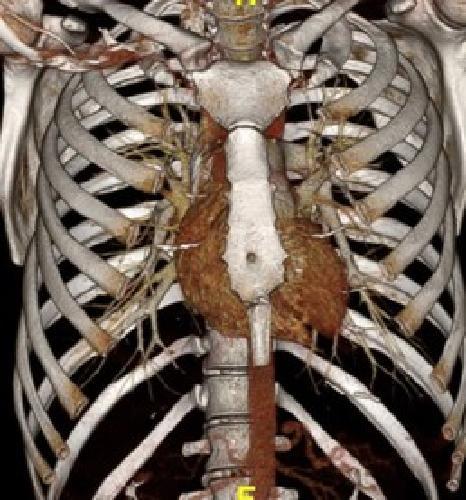Легочная артерия КТ