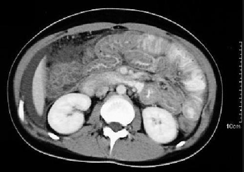 МРТ брюшной полости и забрюшинного пространства