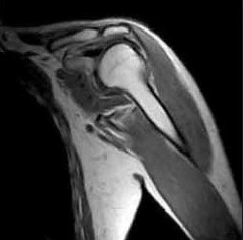 МРТ плечевого сустава в Санкт-Петербурге