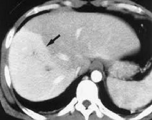 Печеночные вены ангиография