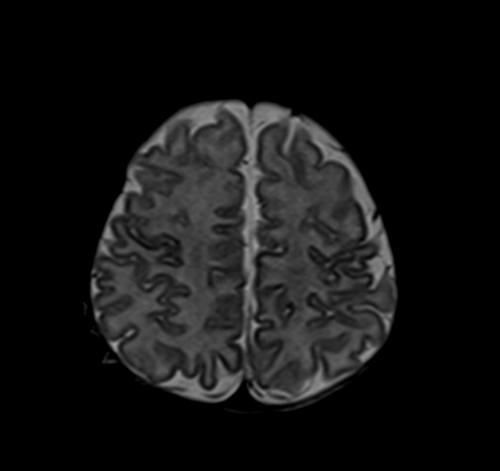 mri pediatric brain t2 axial image