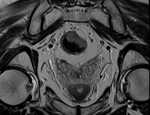 MRI rectal cancer axial  t2 image