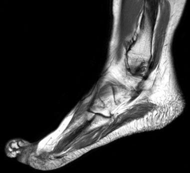 МРТ ноги
