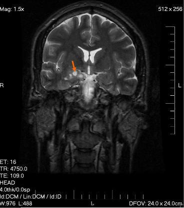 МРТ головного мозга показания