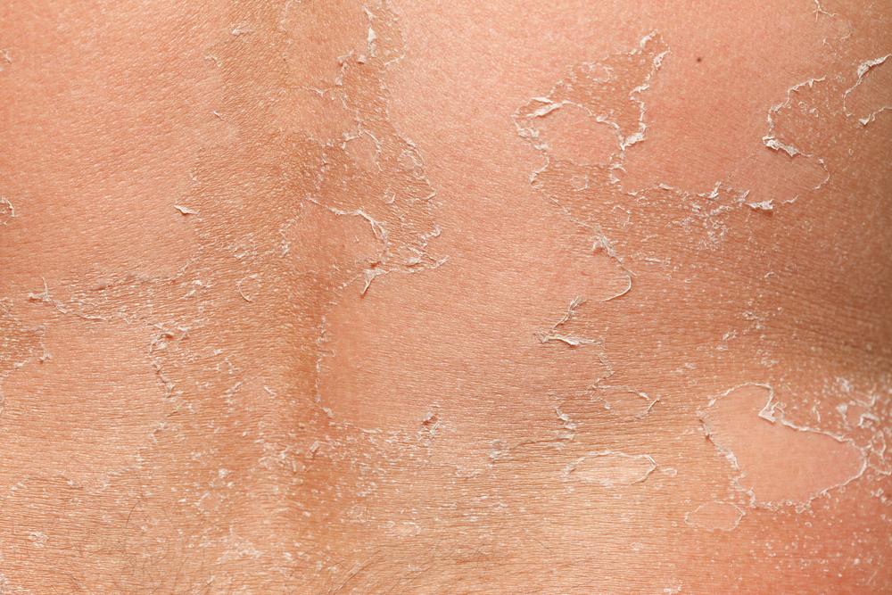 peeling skin