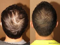 عرض خاص وحل الاخير لمنع تساقط الشعر وانبات فرغات