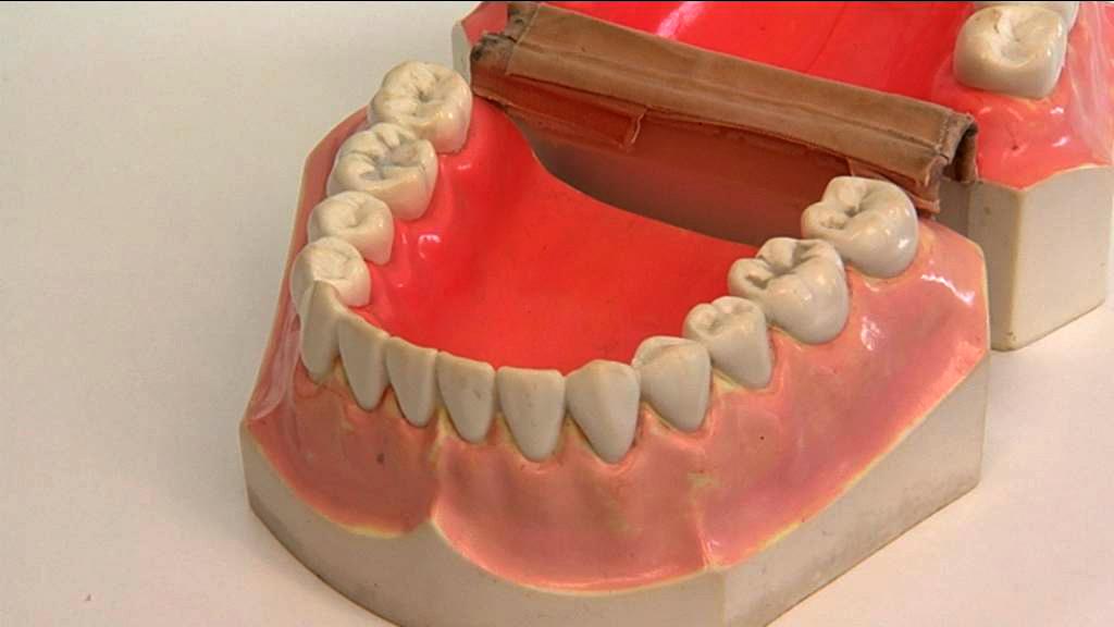 Tandbehandling af voksne