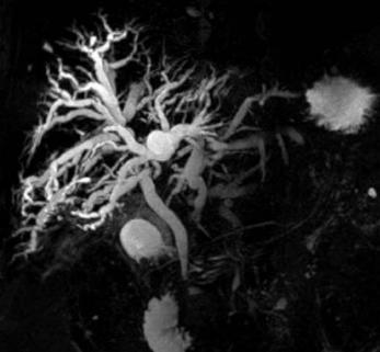 Магнитно-резонансная холангиография