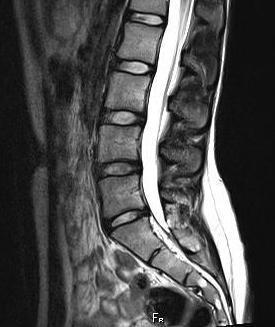 Магнитно-резонансная томография пояснично крестцового отдела позвоночника