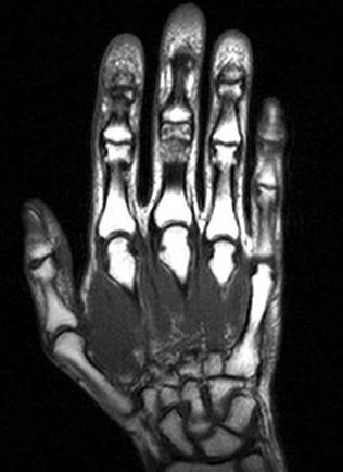 Магнитно-резонансная томография кисти