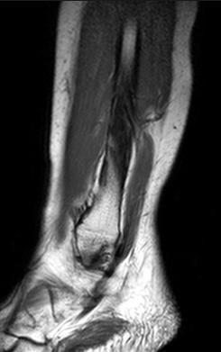 Магнитно-резонансная томография ноги