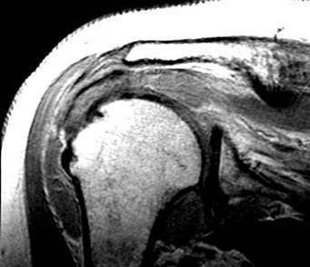 Магнитно-резонансная томография плечевого сустава в Санкт Петербурге