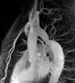 Магнитно-резонансная томография сердца и коронарных сосудов
