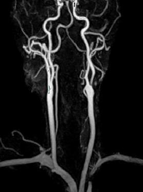 Магнитно-резонансная томография сосудов шеи