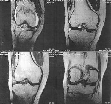 Магнитно-резонансная томография суставов