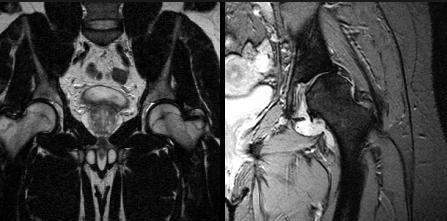 Магнитно-резонансная томография тазобедренного сустава