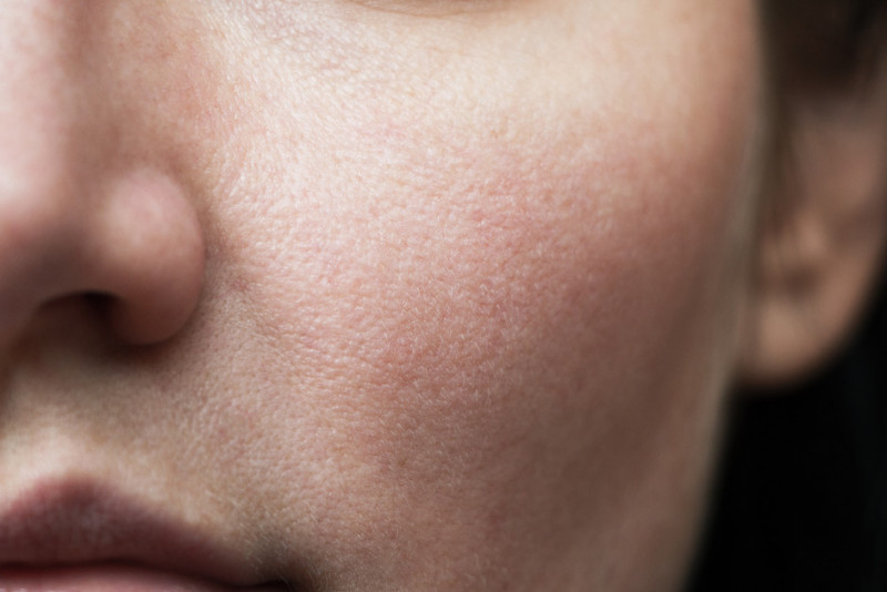 Come restringere i pori dilatati del viso