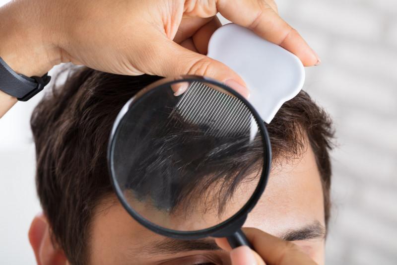 Come eliminare i pidocchi senza shampoo specifico