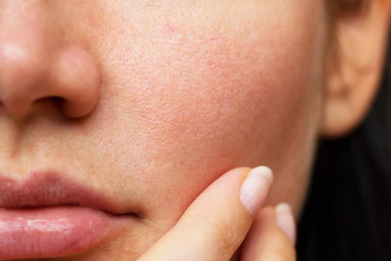 Come chiudere i pori del viso
