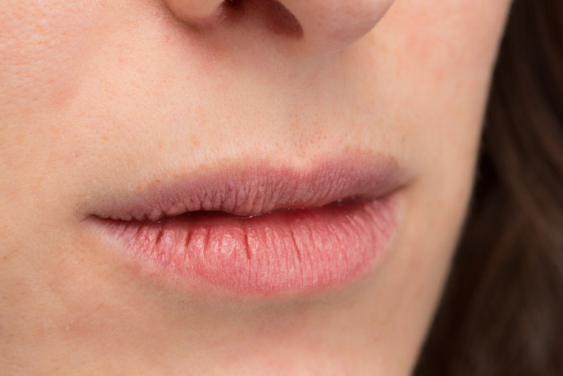 Come rimuovere la pelle secca dal viso