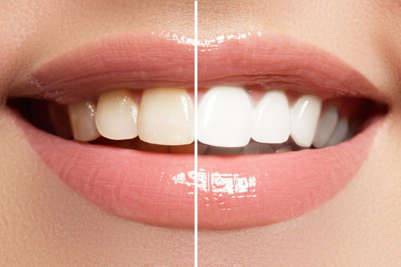 Alimenti da evitare dopo lo sbiancamento dei denti