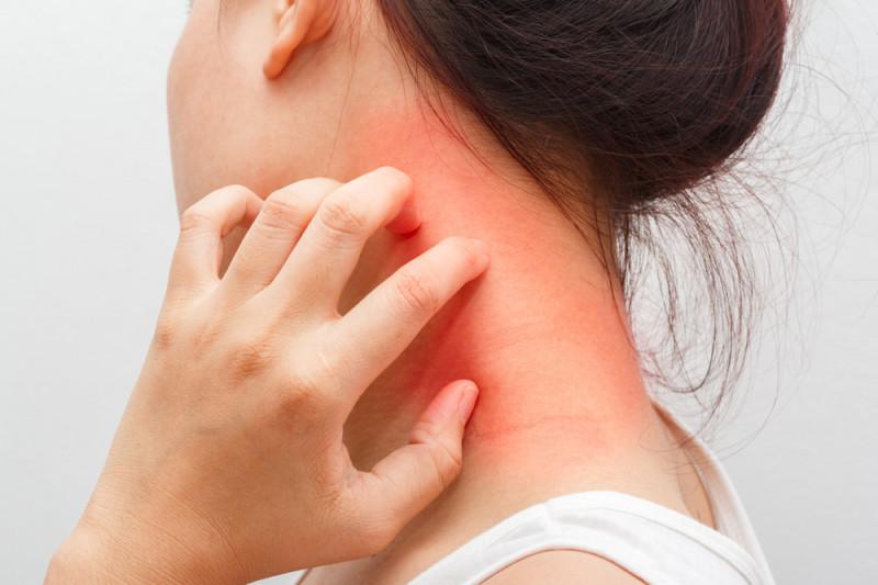 Dermatite atopica: cibi da evitare