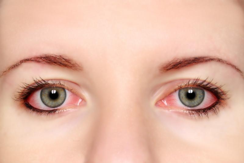 Rimedi naturali per occhi rossi