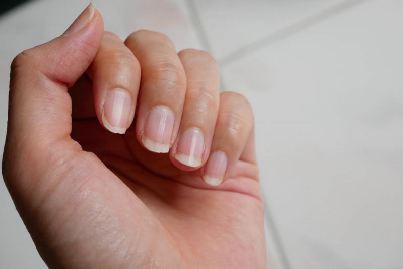 Come velocizzare la crescita delle unghie