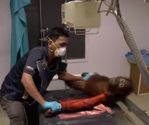 Performing An X Ray