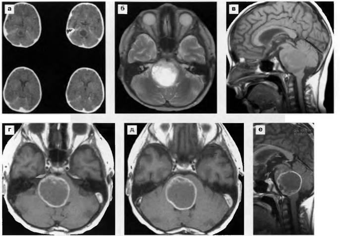 Картинки по запросу мрт ствола головного мозга