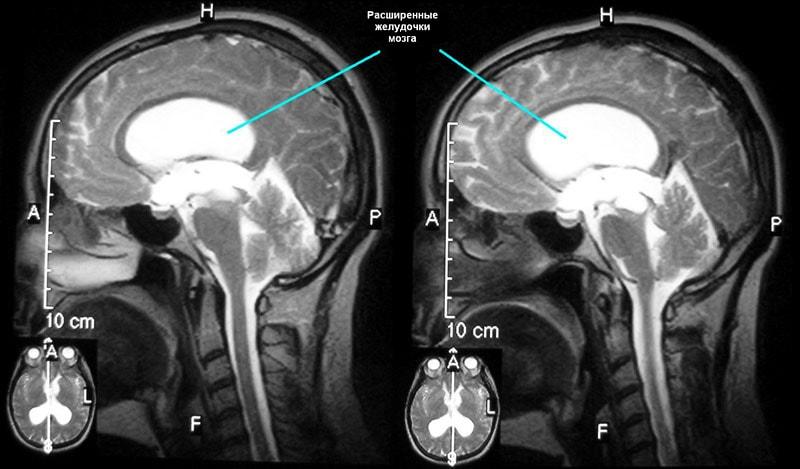 МРТ при головных болях и давлении