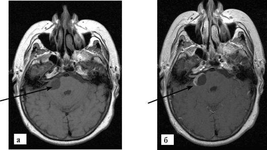 Картинки по запросу мрт черепной нерв