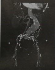 Снимки МРТ и КТ. Аневризма брюшного отдела аорты