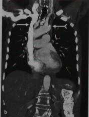 Снимки МРТ и КТ. Удвоение верхней полой вены