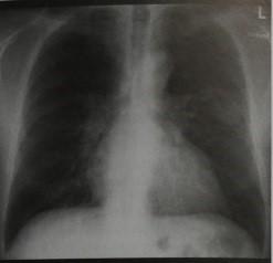 Снимки МРТ и КТ. Наследственная геморрагическая телеангиэктазия