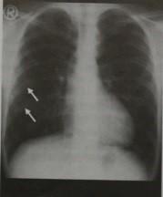 Снимки МРТ и КТ. Коарктация аорты