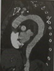 Снимки МРТ и КТ. Острый аортальный синдром