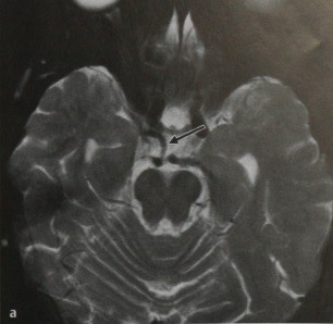 Снимки МРТ и КТ. Персистирующая тригеминальная артерия