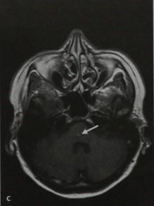 Снимки МРТ и КТ. Капиллярная телеангиэктазия