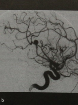 Снимки МРТ и КТ. Микотическая аневризма