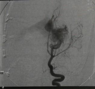Снимки МРТ и КТ.  Мальформация вены Галена