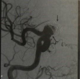 Визуализация у пациентов с аневризмой